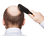 Finasteride combined with oral contraceptives may improve female hair loss