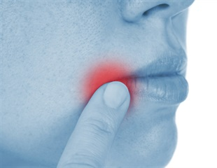 Research sheds new light on reasons behind recurrent aphthous stomatitis