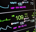 New test can identify ICU patients at greatest risk of secondary infections