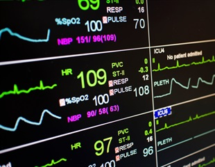Mechanically ventilated patients treated with vasopressor may develop ICU-related weakness