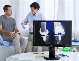 Partial knee replacements are more cost effective and could save the NHS millions
