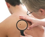 Study: Death rate of melanoma rises for men while for women it falls