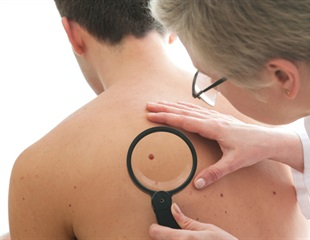 UAMS-developed noninvasive device detects melanoma in earliest stages