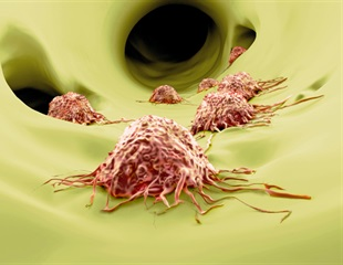 Continuous tracking of melanoma cell invasion helps scientists explain key regulators of metastasis