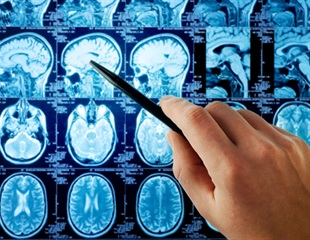 Study finds decline in stroke rates for men but not women