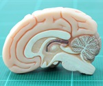 Cedars-Sinai neuroscientists uncover human brain processes crucial to short-term memory