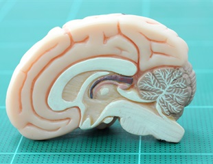 Using 'mini-brains' to detect harmful neurodevelopmental effects of antidepressant