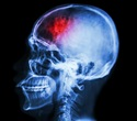 New EU collaborative project aims to improve prevention and treatment of stroke
