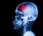 Large scale study shows success of epilepsy surgery