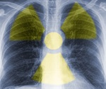 V/Q imaging can detect early stages of COPD
