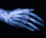 Research highlights benefits of oral prednisolone in patients with hand osteoarthritis