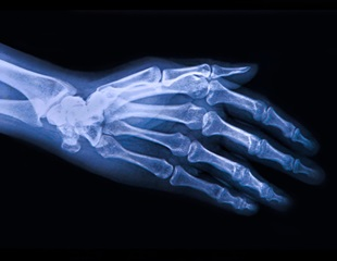 Removing senescent cells from joints could reverse progression of osteoarthritis