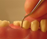 GSK3 inhibition protects against gum disease