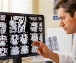 Teleradiology Specialists reports record growth in January