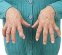 Rheumatoid arthritis drug blocks metabolic pathway, reduces breast cancer tumors in mice