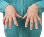 Common bacterium that causes gum infections may trigger rheumatoid arthritis