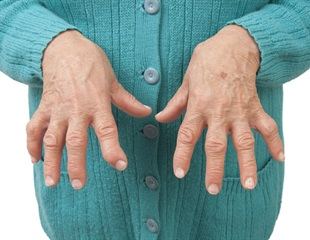 Pitt study sheds light on shared roots of schizophrenia and rheumatoid arthritis