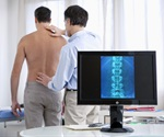 Bisphosphonates - osteoporosis drugs triple risk of bone necrosis