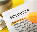 Vast majority of melanoma appears on the skin as new spots, say researchers