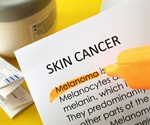 Protein linked to malignant melanoma