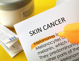 Dermatology experts review current screening practice for melanoma in the U.S.