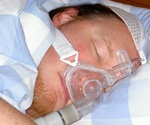 People with sleep apnea appear to be at increased risk of pneumonia