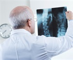 Gulf Coast Spine Care now offers new, improved treatment for degenerative disc disease