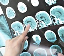 Drug combination may prevent secondary stroke in certain patients, study shows