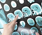COVID-19 could be diagnosed using stroke scans