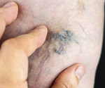 Sclerotherapy now the number two most performed cosmetic surgical procedure thanks to men