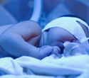 Study could provide novel therapeutic approach for preventing severe jaundice in newborn babies