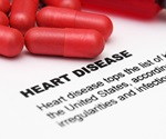 Mortality risk from cardiovascular disease higher for people with osteoarthritis