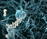 Understanding Alzheimer's Disease Through Genomics and Proteomics