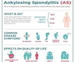 Novartis' Cosentyx® show no progression in spinal damage in 80% of ankylosing spondylitis patients
