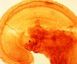 Inner ear damage brain warnings from nerve cells