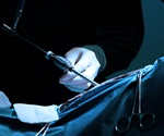 Treating appendicitis by laparoscopic surgery may not be worth the cost