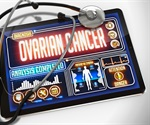 Study identifies expression of tumor antigen as marker for aggressive ovarian cancer