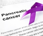 Two migration proteins increase predictive ability of biomarker for pancreatic cancer
