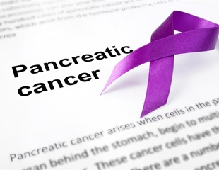 Newly identified biomarker panel could pave way to earlier detection of pancreatic cancer