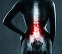 Menopause linked to severity of lumbar disc degeneration