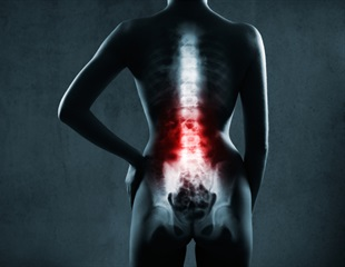 Young athletes commonly have bone marrow edema in lower spine, study shows