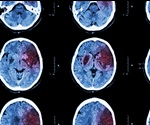 18FDG positron emission tomography for visualizing the effects of cerebral ischemia