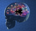 Researchers identify mechanisms behind loss of sensory perception in Parkinson's disease
