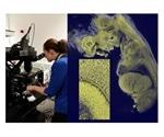 Mesolens microscope uses Prior Scientific's precision stages and focusing systems for 3D imaging of biomedical specimens