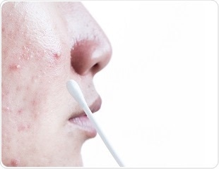 Acne: when to seek help?