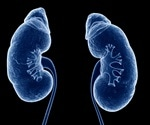 Kidney transplants: Volume of services correlated with quality of treatment outcomes