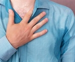 Excessive sweating could be hyperhidrosis that often goes undiagnosed