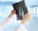 """Increase in double mastectomy is """"striking,"""" says study"""