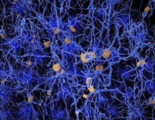 Researchers seek to understand role of APOE mutation in Alzheimer's disease