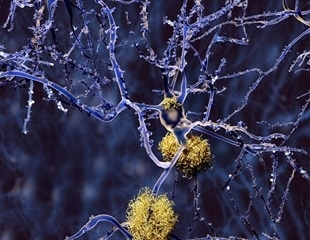 Biocompatible photooxygenation catalyst could be potentially used to treat amyloid diseases